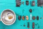 """Hà Nội: Tìm thấy bật lửa, dao lam, túi nilon... trong bụng người đàn ông """"ăn mọi thứ"""""""
