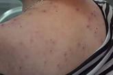 Bác sĩ dùng nhíp loại bỏ hơn 400 ngòi ong châm trên cơ thể bệnh nhân