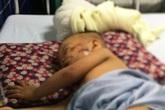 Chó becgie 38kg tuột xích tấn công bé trai 2 tuổi nhập viện