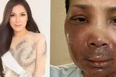 Hương Tràm, Dương Triệu Vũ và đồng nghiệp xót xa khi nhìn thấy gương mặt bị bỏng chín của ca sĩ Hồng Ngọc