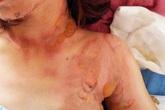 Một phụ nữ bị chặn xe, tạt xăng phóng hỏa gây bỏng nặng