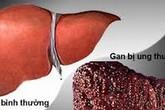 Hiểu tác nhân gây ung thư và xơ để có lá gan khỏe