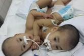 Sức khỏe hai bé được phẫu thuật tách rời đang dần ổn định