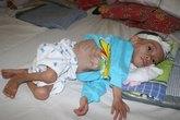 Tổ chức lễ cầu siêu cho bé 3 tuổi da bọc xương Hứa Văn Dũng