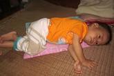 Ngằn ngặt tiếng khóc của bé 17 tháng tuổi bị u hạch