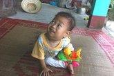 Nụ cười hiếm hoi của bé 17 tháng tuổi bị u hạch