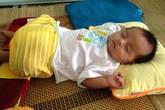 Đau đớn bé gái 3 tháng tuổi bị biến dạng bộ phận sinh dục