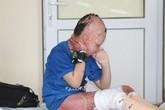 Bi kịch của đứa trẻ mồ côi bị xăng đốt cháy đen cơ thể