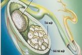 Sỏi mật – nguyên nhân chính gây nhiễm khuẩn gan mật
