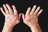 Ngăn ngừa biến chứng do viêm khớp dạng thấp