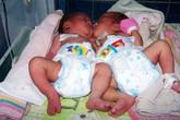 Hai bé song sinh dính liền nhau được cứu sống diệu kỳ