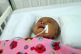Xót xa bé 3 tháng tuổi chấn thương não vì cha ném xuống đường