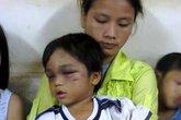 Cháu bé 3 tuổi bị bạo hành được mẹ đưa đi trốn?
