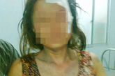 Phó ban Tuyên giáo huyện đánh một phụ nữ gẫy răng