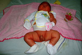 Bé sơ sinh nặng gần 6 kg ở Bình Định