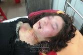 Đang ngủ, một thiếu nữ bị đâm dao vào đầu