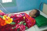 Người mẹ trẻ bỏng nặng do ngã vào bếp củi