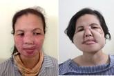 Trả lại gương mặt cho người phụ nữ bị bỏng axit