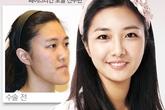 Sự kỳ diệu của phẫu thuật thẩm mỹ xứ Hàn