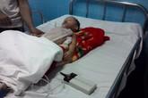 Bé 2 tuổi bỏng nặng do ca nước của mẹ