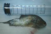 Suýt chết vì cá rô chui vào họng