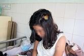 Thiếu nữ 9X bị rạch mặt vì khuyên đàn em bỏ chơi