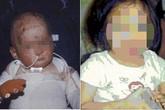 Cha mẹ nghiện ma túy, con chết thảm