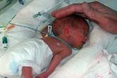 Sức sống mãnh liệt của bé sơ sinh nặng 600 g