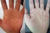 Phẫu thuật đường chỉ tay để đổi vận mệnh