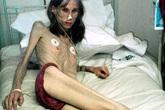 """Nhịn ăn suốt 20 năm, phụ nữ 30 biến thành """"bộ xương"""""""