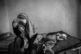 Thêm bộ ảnh chấn động về cuộc sống của hai mẹ con bị tạt axit