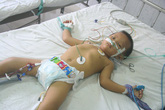 Cháu bé 3 tuổi nguy kịch vì bị ong bò vẽ đốt