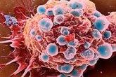 Phát hiện cách tiêu diệt cấu trúc tế bào ung thư