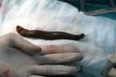Kinh hãi đỉa dài 20cm trong bàng quang của bệnh nhi