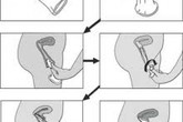 Hướng dẫn sử dụng bao cao su cho nữ