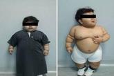 """Cậu bé """"siêu béo"""" được phẫu thuật dạ dày để giảm cân"""