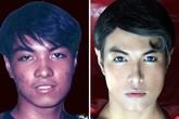 Chàng trai phẫu thuật 13 lần để trở thành siêu nhân