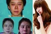 """Thiếu nữ xinh đẹp trở nên """"xấu kinh hoàng"""" sau 9 lần phẫu thuật"""