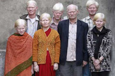 Đại gia đình bạch tạng lớn nhất thế giới