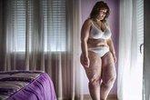 Quá trình giảm 55kg của cô gái nặng 124kg