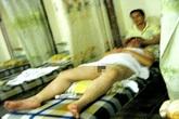 Nhân viên khiếm thị massage cho khách khỏa thân