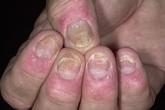 Thương tổn móng ở bệnh nhân vẩy nến