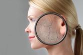 Các phương pháp chống nám da