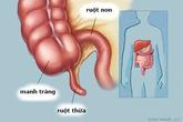 Nhận biết các triệu chứng của viêm ruột thừa