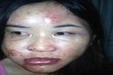 Cô giáo bị chồng hành hạ dã man