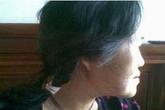 Hãi hùng một phụ nữ bị chó hàng xóm cắn nát mặt