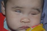 Nhói lòng bé gái mù hai mắt bấm sinh lăn lóc trên nền đất