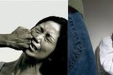 Đớn đau mất khả năng làm mẹ vì bị chồng đánh
