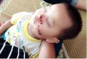 Bố say rượu, con 2 tuổi bị dao cứa rách mặt