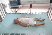 Nghẹn lòng bé gái mới 16 tháng tuổi nhập viện vì sốc bỏng, có bố mẹ đều mù lòa